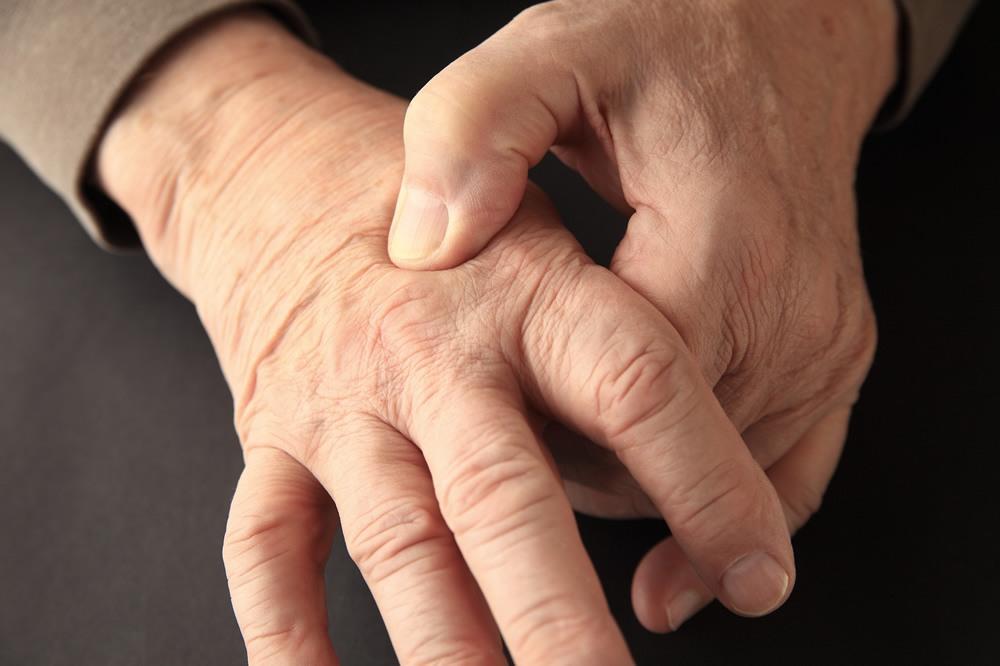 How to Use Hemp Oil for Arthritis